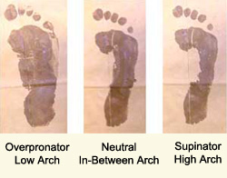 Picture of Overpronator, Neutral and Underpronator Foot Marks